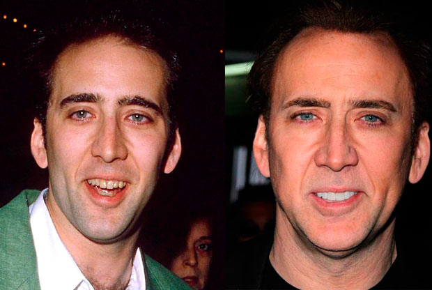 19 Celebs Who Owe Their Smiles to Cosmetic Dentistry