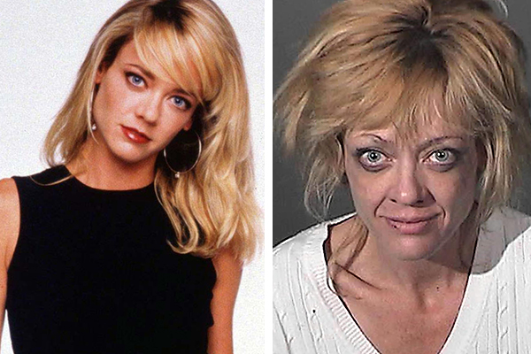 Drugs Before And After Celebrities